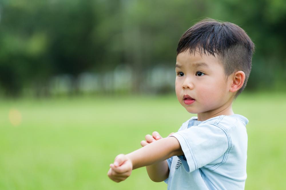 Cara Mengatasi Alergi Kulit pada Anak yang Perlu Diketahui